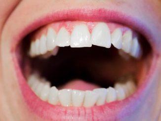 Bolesti zubů – co může pomoci?